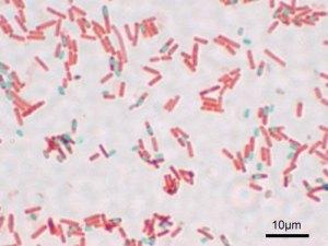 Bacillus_subtilis_Spore